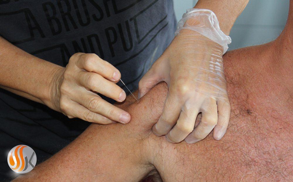 Qu'est ce que le Dry Needling ou Puncture sèche