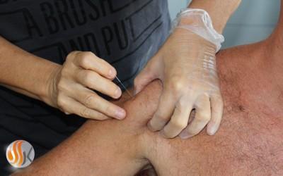 Dry Neadling