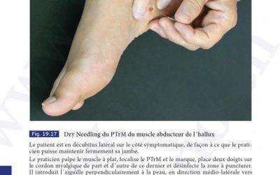 Dry Needling du Ptr du muscle abducteur de l'Hallux