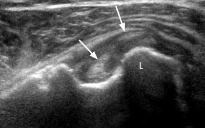 Echographie du long biceps